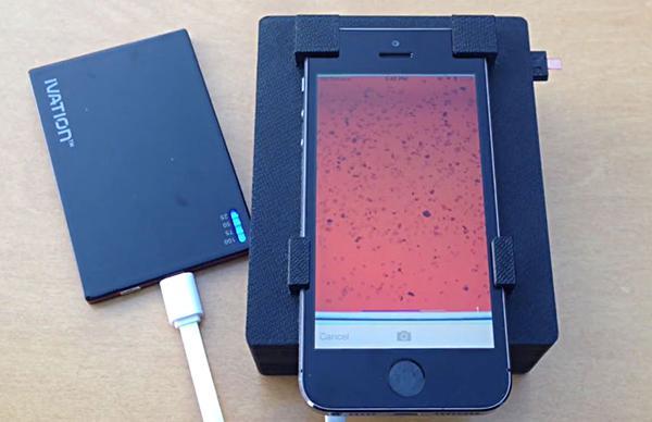 Kaliforniya Üniversitesi araştırmacıları iPhone'u portatif bir mikroskop haline getirdi