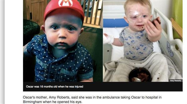 Kontrolü kaybedilen drone ufak bir çocuğun gözünü kaybetmesine sebep oldu