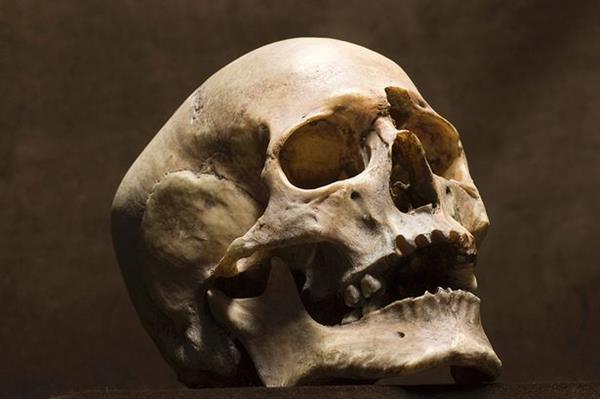 Kafatası kemiklerinin onarımında kullanılabilecek kök hücreleri keşfedildi