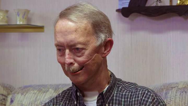 Yaşlı adam 3D yazıcı ile yeni çenesine kavuştu
