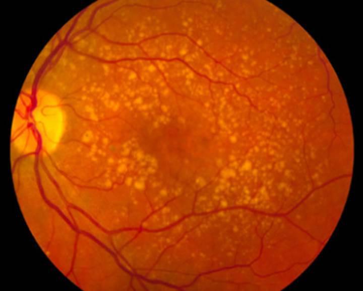Yeni nesil retinal implant görme engelini ortadan kaldırabilir