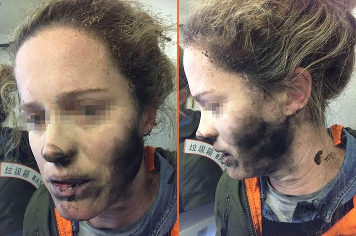 Kablosuz kulaklık patladı: Kullanıcının yüzünde yanıklar oluştu