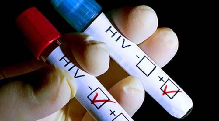 Yeni keşif AIDS tedavisinin etkisini arttırabilir