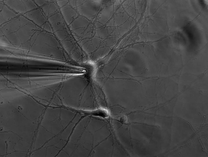 Araştırmacılar, nöronları takip edebilen sistem geliştirdi