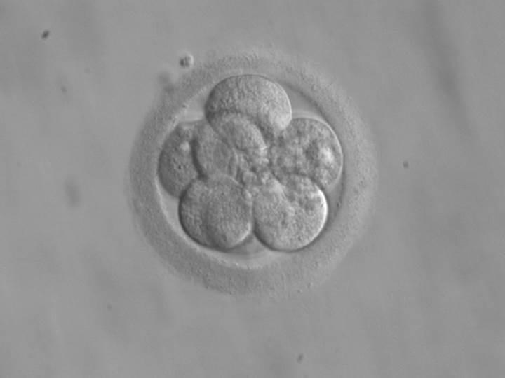 Anöploid embriyodan sağlıklı birey gelişebilir mi? Bir başarı hikayesi