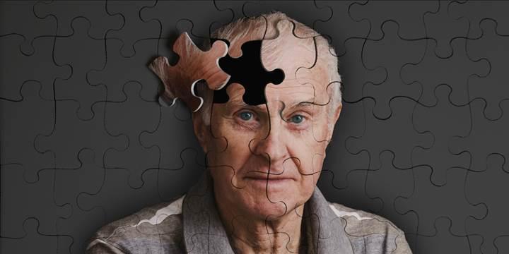 Yunuslarda Alzheimer belirtisi saptandı