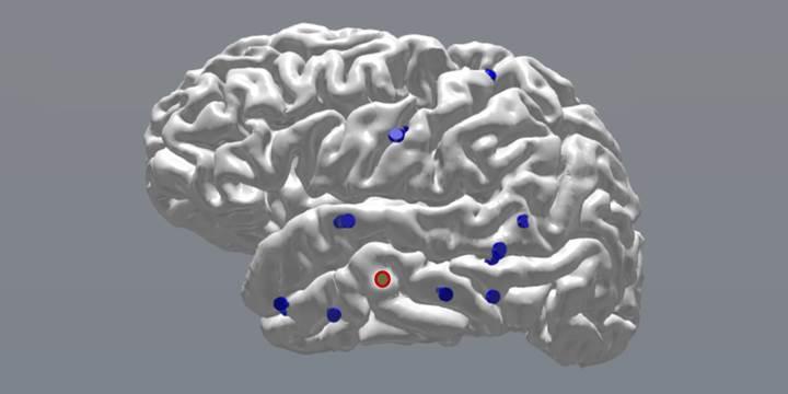 Beynin elektrikle uyarılması hafızayı geliştiriyor
