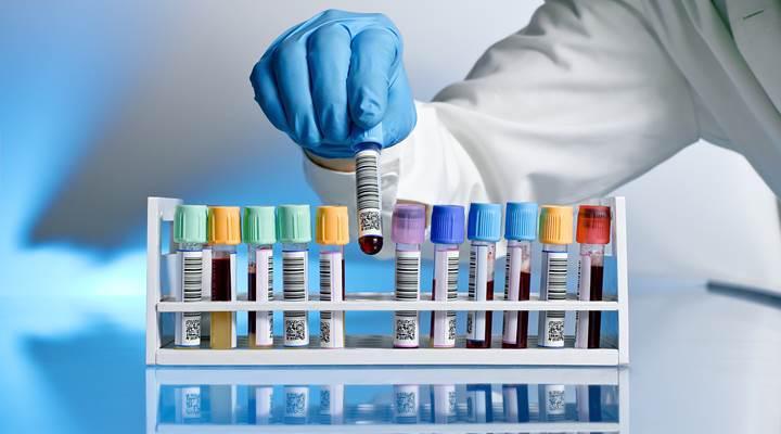 Otizm Spektrum Bozukluğu teşhisi için kan testi geliştirildi
