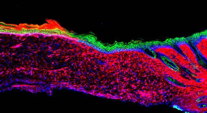 Deri hücreleri programlanarak yaralar iyileştirildi