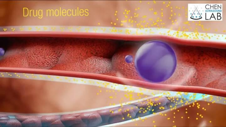 Burun spreyi ve ses dalgalarıyla beyne doğrudan ilaç göndermek mümkün