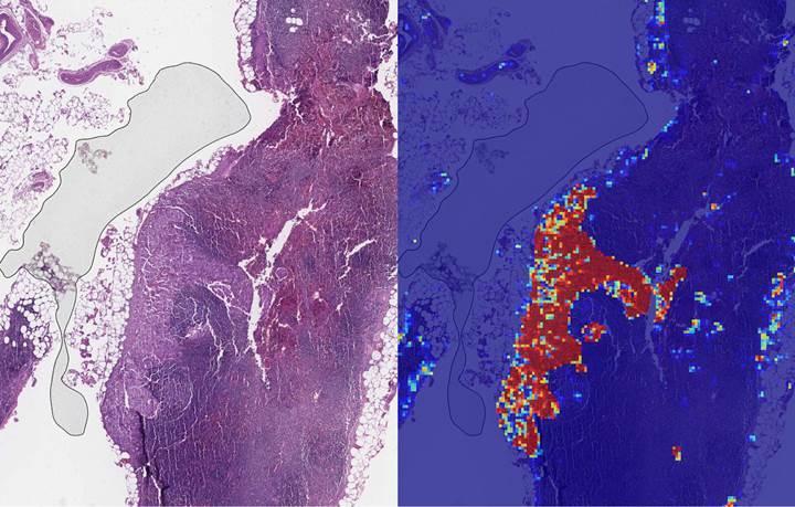 Meme kanserini yüzde 99 doğruluk oranıyla tespit eden yapay zeka
