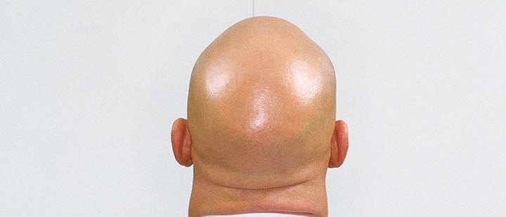Saçları dökülmüş insanların kafası neden parlar?