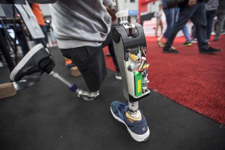 Yapay zeka destekli robotik diz, amputelerin dakikalar içinde yürüyebilmesini sağlıyor