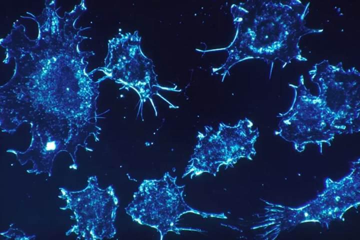 İsrailli bilim insanları kansere çare bulduklarını düşünüyor