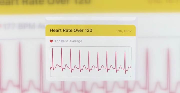 Apple Watch yine önemli bir kalp rahatsızlığını ortaya çıkardı
