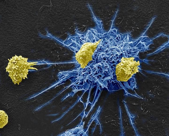 Türünün ilki olan HIV terapisi, virüsü saklandığı yerden çıkarıp öldürebiliyor