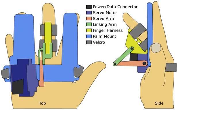 Yeni parmak aparatı Parkinson'u tespit edebilecek