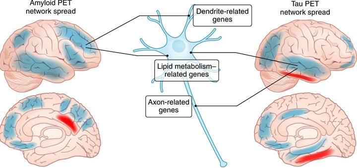 Alzheimer hastalığı iki aşamalı tanı yöntemi ile semptom göstermeden yıllar önce tespit edilebilecek