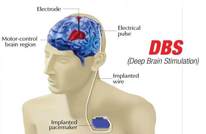 Bağımlılık beyin implantları ile tedavi edilecek