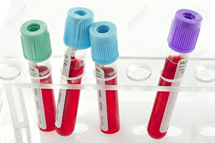 Kandaki antibiyotik seviyesini ölçen yama geliştirildi