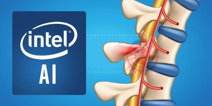 Intel, yapay zeka ile felçli hastaların tekrar yürüyebilmesini sağlayabilir