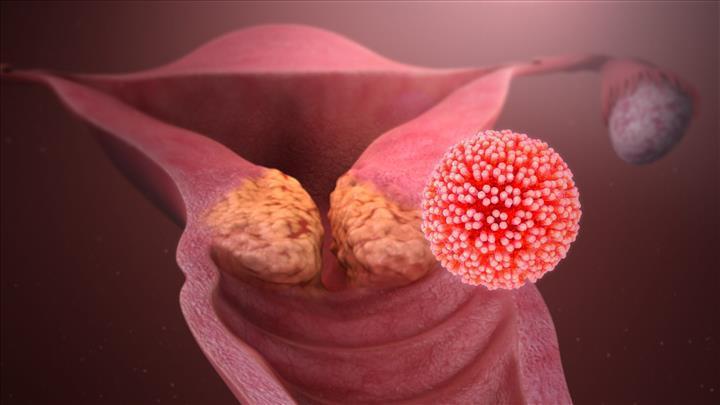 CRISPR ile serviks kanseri tedavi edildi