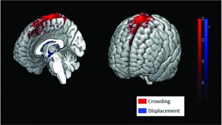 Uzun uzay görevleri astronotların beyin yapısını ve işlevini değiştirebilir