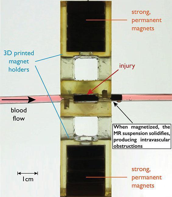 Kanamayı durduran manyetik sıvı geliştirildi