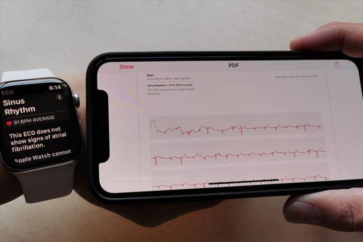 Apple'a bu kez bir doktordan dava geldi