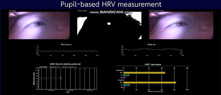CardiVu uygulaması göz bebeğinden nabız ölçebiliyor