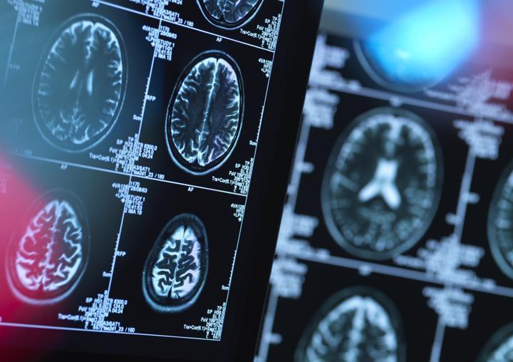 IBM'e ait yapay zekâ, Huntington Hastalığı'nın belirtilerini tahmin etmede kullanılıyor