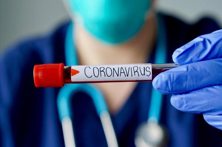 Alibaba, Koronavirüs'ü yüzde 96 doğrulukla teşhis edebilen yapay zeka geliştirdi
