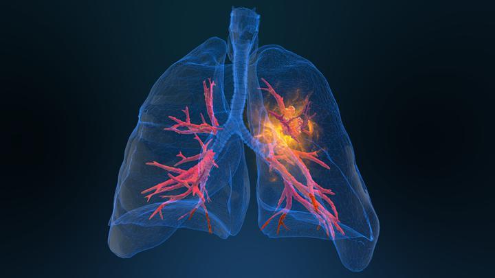 Kanserli akciğeri hastanın vücudundan çıkaran doktorlar, temizledikleri organı geri taktı