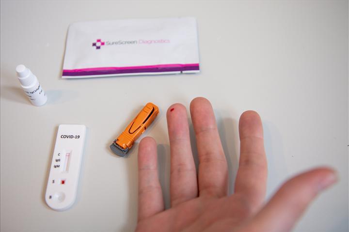 İngiltere internetten koronavirüs antikor testi satacak