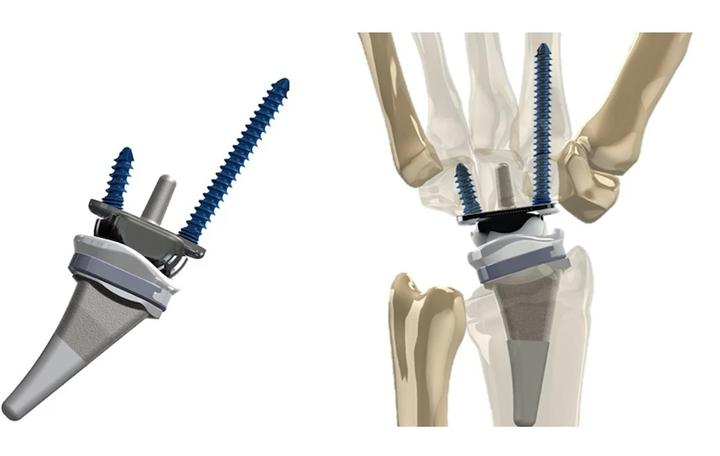 Yeni bilek implantı geliştirildi