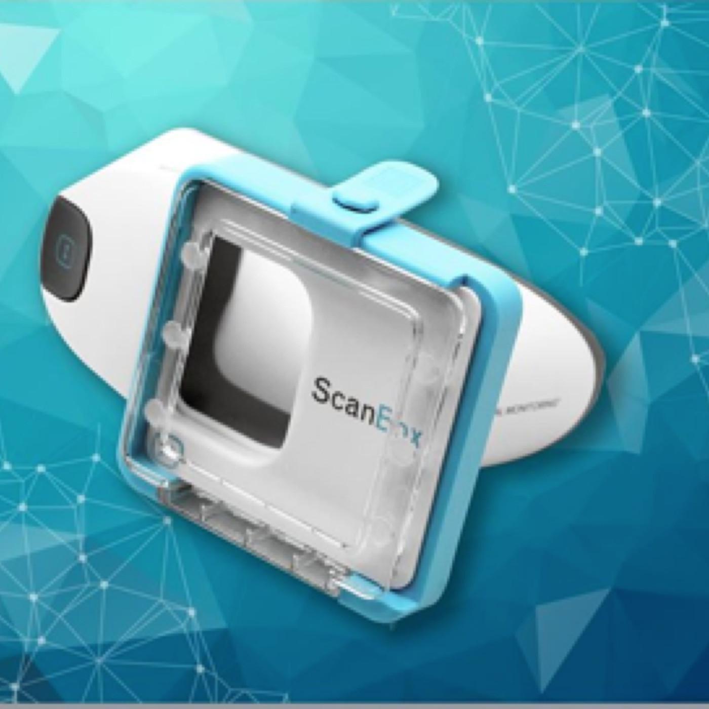 Akıllı telefon ile diş görüntülüme cihazı geliştirildi