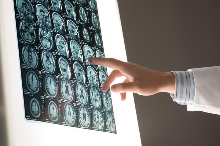 X-ray görüntüleme yöntemi ile elastografi mantığı birleştirildi