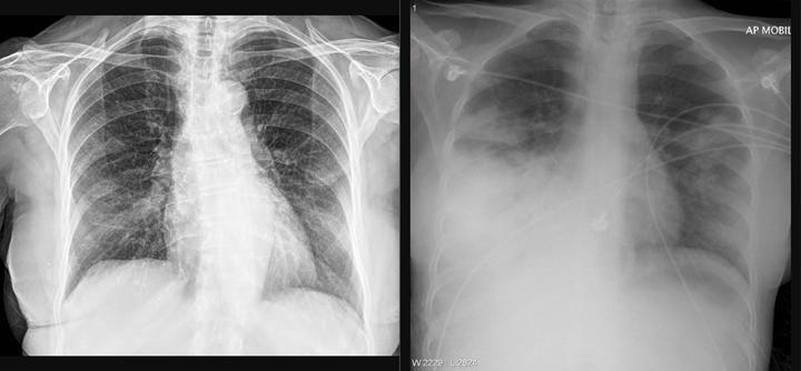 Türk araştırmacıdan röntgen görüntüsü ile Covid-19 pnömonisini belirleyen web sayfası