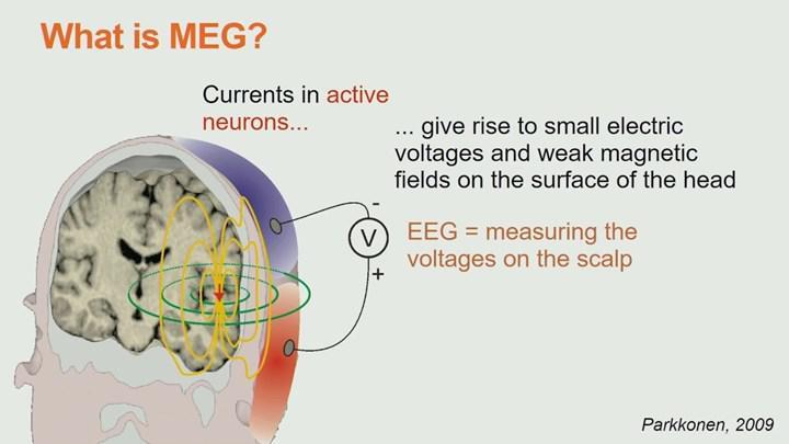 Beynin tamamını monitörize edebilen MEG kaskı geliştirildi