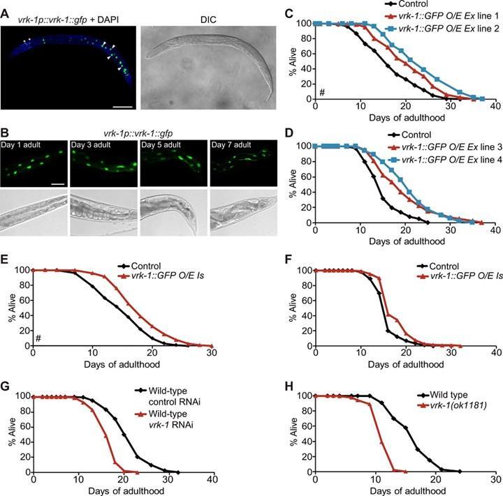 VRK-1 enzim aktivitesi nematodlarda yaşam ömrünü uzatıyor