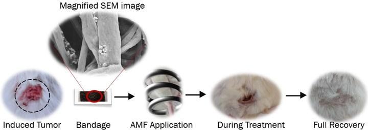 Deri kanseri tedavisinde kullanılabilicek bandaj geliştirildi