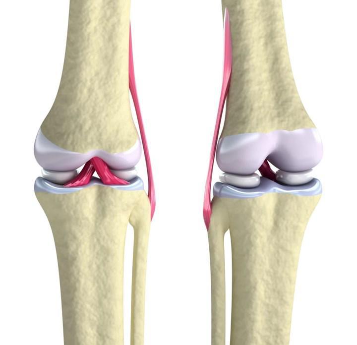 Kartilaj dokusunun rejenerasyonunu sağlayan implant geliştirildi