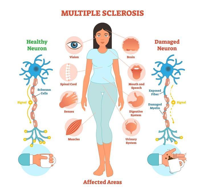 Bağırsakta üretilen IgA antikorların multipl skleroz alevlenmelerinde etkili olduğu gösterildi
