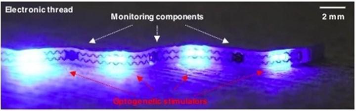Tembel mesane tedavisinde kullanılabilecek implant geliştirildi