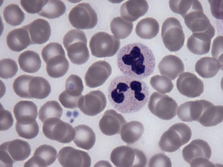 Hematopoetik kök hücrelerin korunmasında görev alan protein keşfedildi