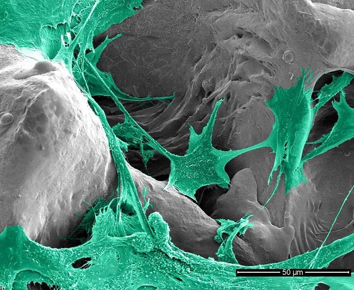 Enfeksiyonları önleyebilecek implant kaplaması geliştirildi