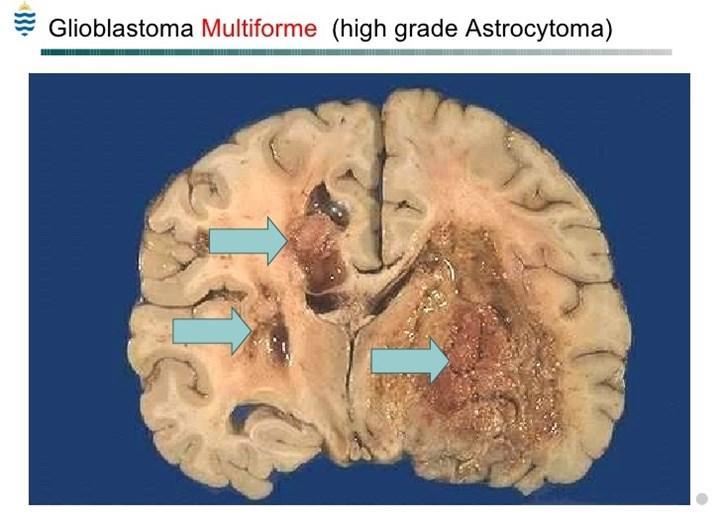 Glioblastoma multiformenin metastaz yolağını aydınlatabilecek cihaz geliştirildi