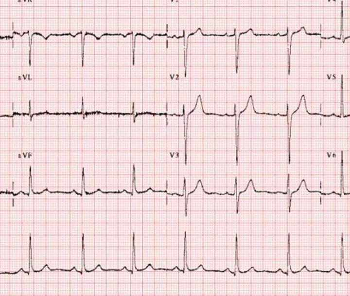 Tarihte ilk defa fonksiyon gören insan kalbi üretildi