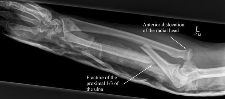 Yeni implant kemik onarımını hızlandırabilir