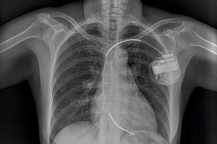 Yakın gelecekte kalp pilleri ışık enerjisi ile şarj edilebilir